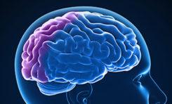Understanding Types of Dementia: Pseudodementia
